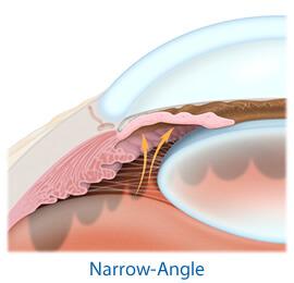 Narrow-Angle